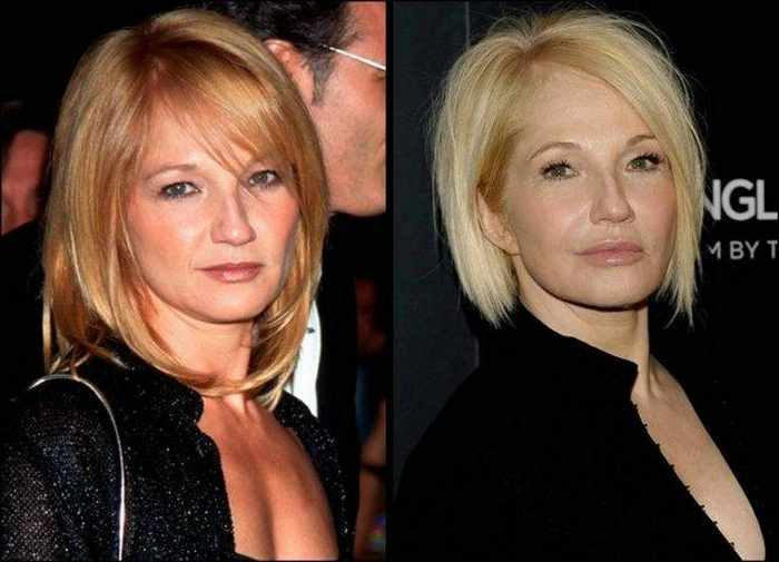 24 Celebrities That Aged Terribly _02