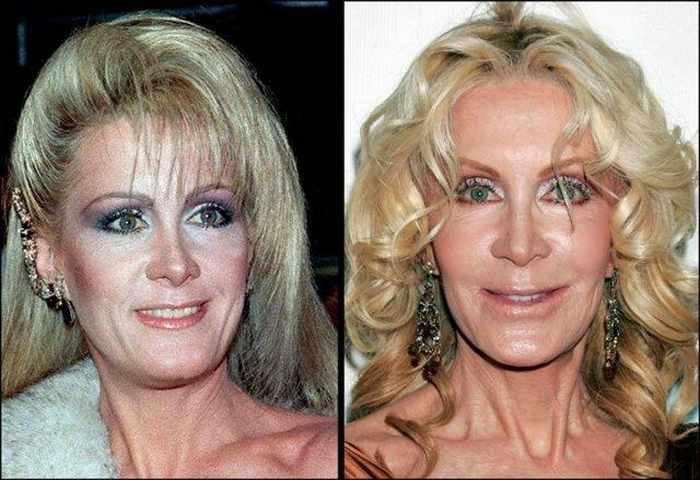 24 Celebrities That Aged Terribly _05