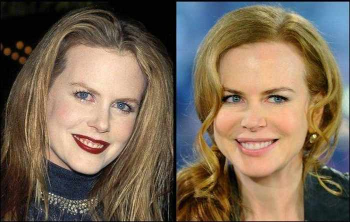 24 Celebrities That Aged Terribly _15