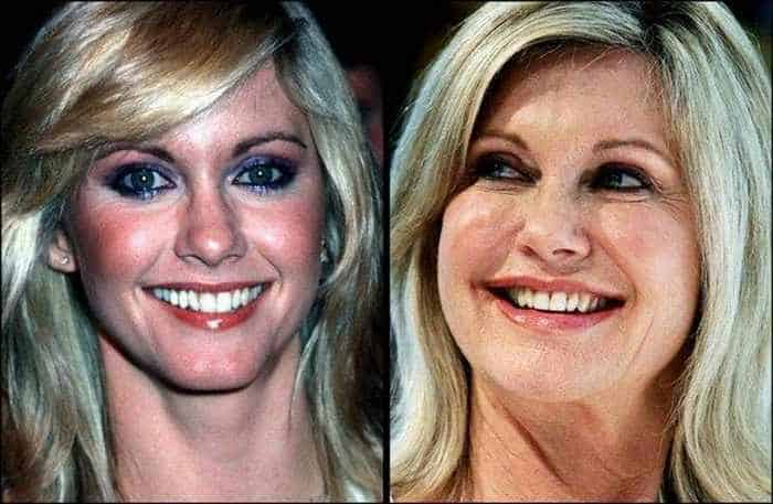 24 Celebrities That Aged Terribly _16