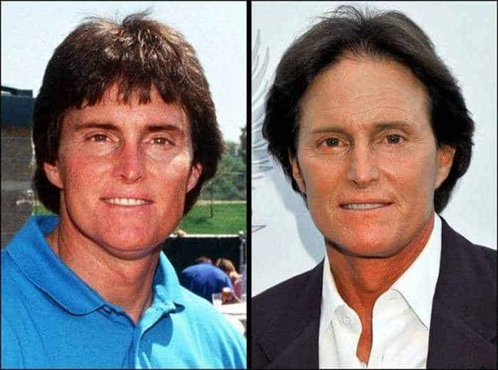 24 Celebrities That Aged Terribly _20