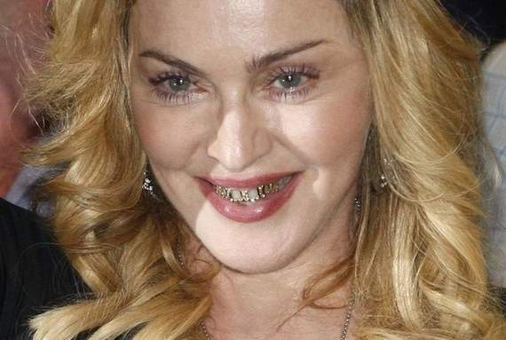 Awkward Grill Girl Madonna Looks Funny Wearing Golden Braces -05