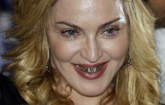 Awkward Grill Girl Madonna Looks Funny Wearing Golden Braces -06
