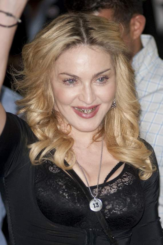 Awkward Grill Girl Madonna Looks Funny Wearing Golden Braces -08