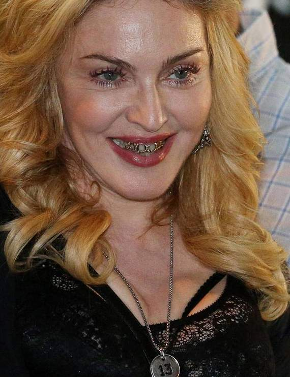 Awkward Grill Girl Madonna Looks Funny Wearing Golden Braces -09