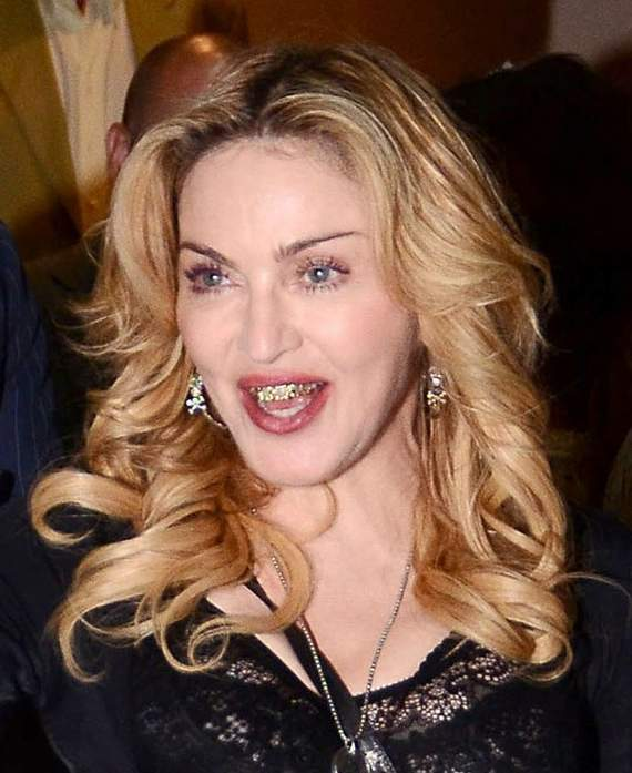 Awkward Grill Girl Madonna Looks Funny Wearing Golden Braces -10